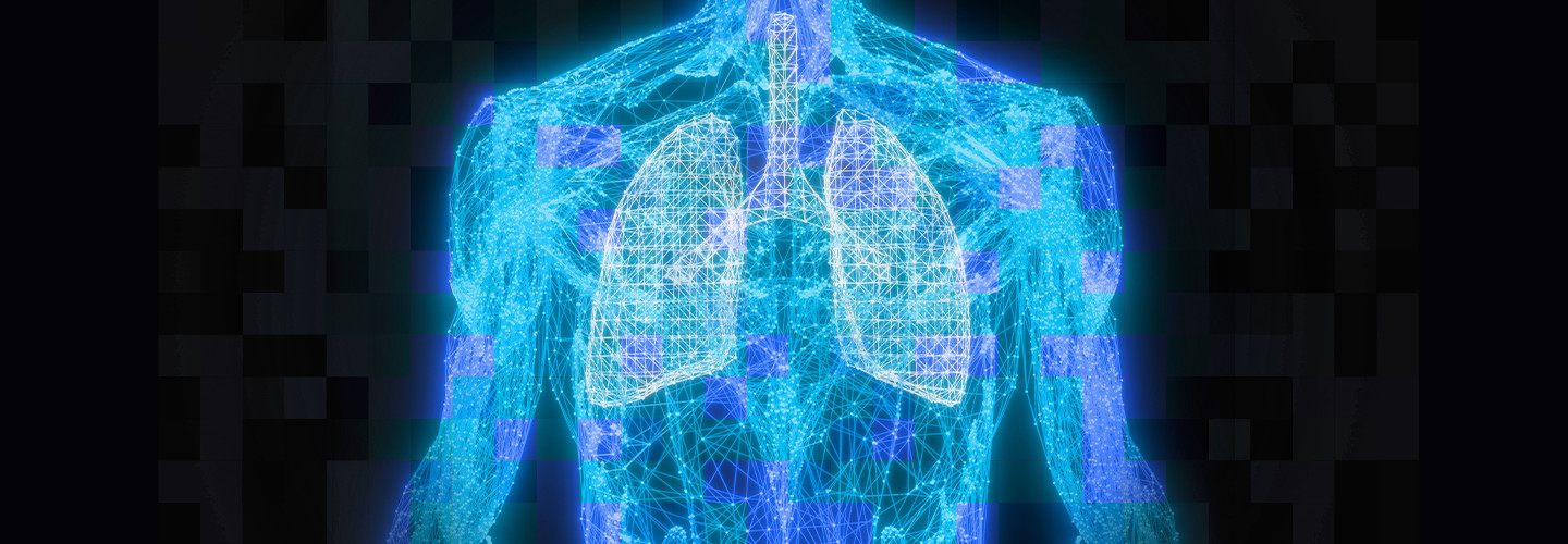 Lung can
